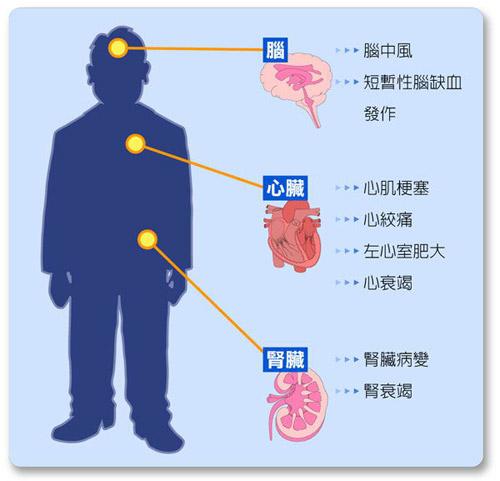人体正常血压_按who的标准,人体正常血压为收缩压≥140mmhg和(或)舒张压≥90mmhg,即